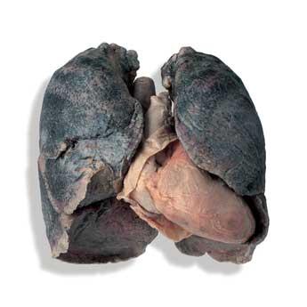 Заболевания лёгких хронические обструктивные