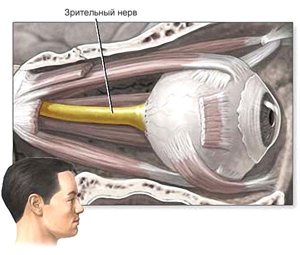 Заболевания сетчатки и зрительного нерва наследственные