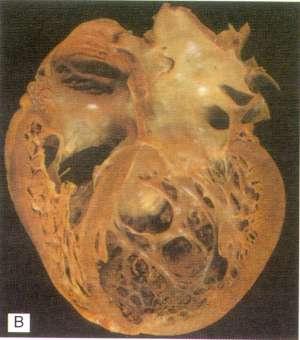 Кардиомиопатия дилатационная