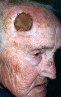 Карцинома кожи плоскоклеточная