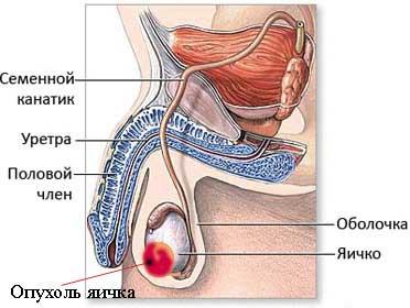 Опухоли яичек