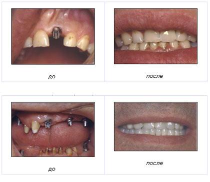 Дефекты зубных рядов