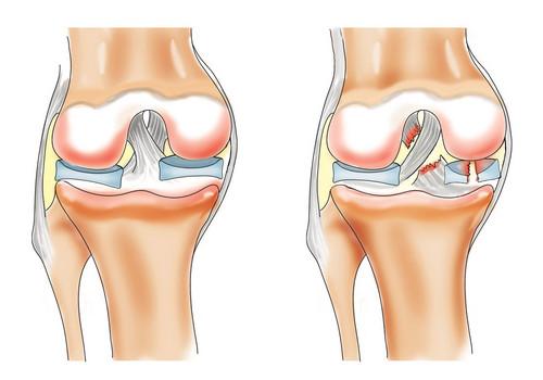 Слева - нормальный коленный сустав.  Справа - разрыв мениска и крестообразной связки.  МР-томографии.