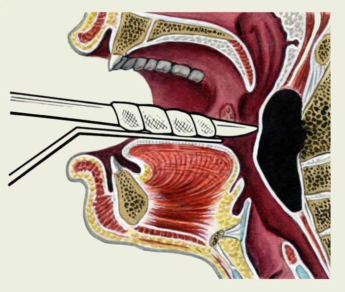 заглоточный абсцесс симптомы у взрослых фото